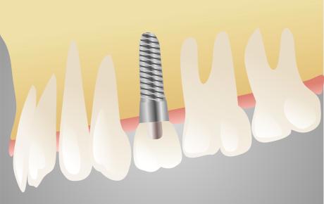 implantologia marcon