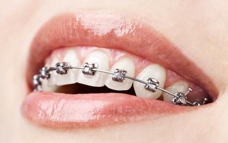 ortodonzia apparecchi denti